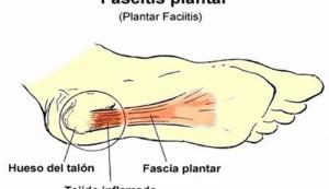 fascitis_plantar_1